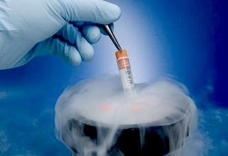 stem-cell-banking