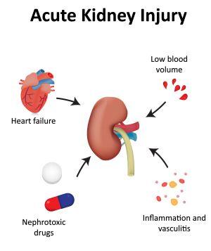 急性腎障害治療市場