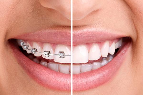 orthodontic-supplies-market