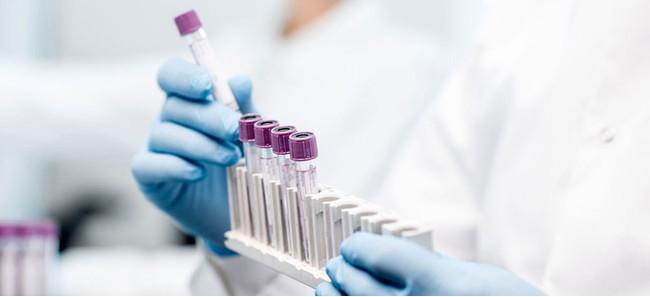 hemato-oncology-testing-market