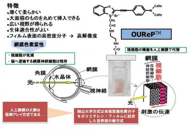 岡山大学方式の人工網膜 (OUReP(TM))