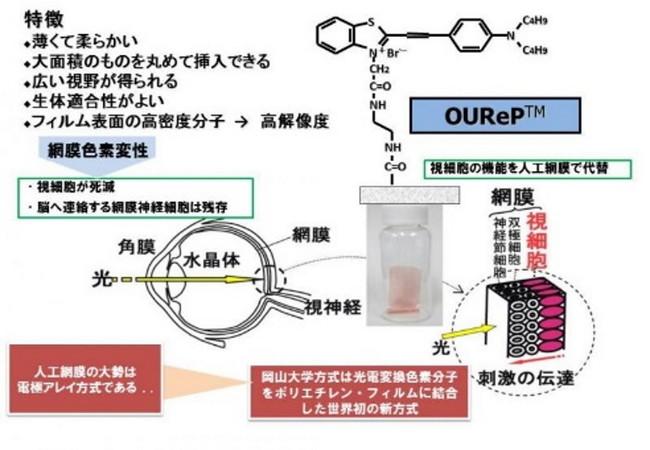 光電変換色素分子を素子として使う色素結合薄膜型人工網膜(OUReP(TM))