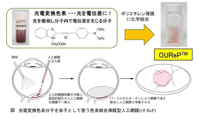 光電変換色素分子を素子として使う色素結合薄膜型人工網膜(OUReP)