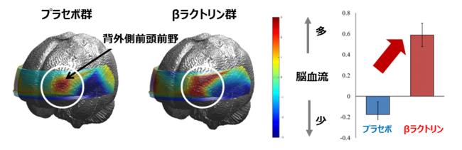 図1 34CH光トポグラフィーを用いた脳血流測定の結果