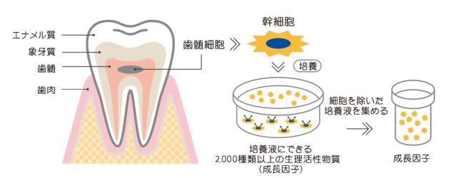 乳歯から歯髄を採取し培養上清液を回収するイメージ図