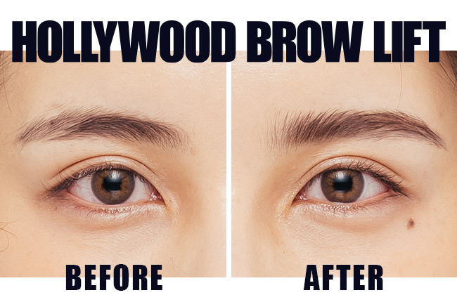 HOLLYWOOD BROW LIFT before after