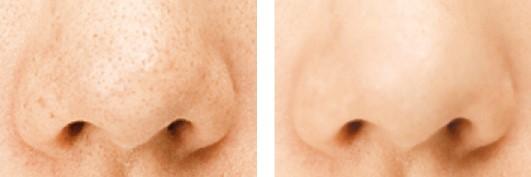 毛穴に汚れが詰まった鼻→毛穴汚れが取れたキレイな鼻
