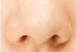 黒ずみのない鼻