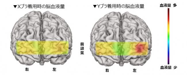 図1: 会話時の脳血液量 画像(被験者9名平均値)