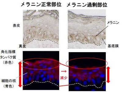 メラニンが過剰発生した部位のターンオーバー方向の乱れと、肌老化の関係に着目。「緑茶カテキン」に表皮細胞分裂を垂直に導く機能を発見
