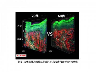 皮膚の透明化技術を応用して弾性線維の立体構造を解析し、肌の弾力維持に関する新事実」を発見