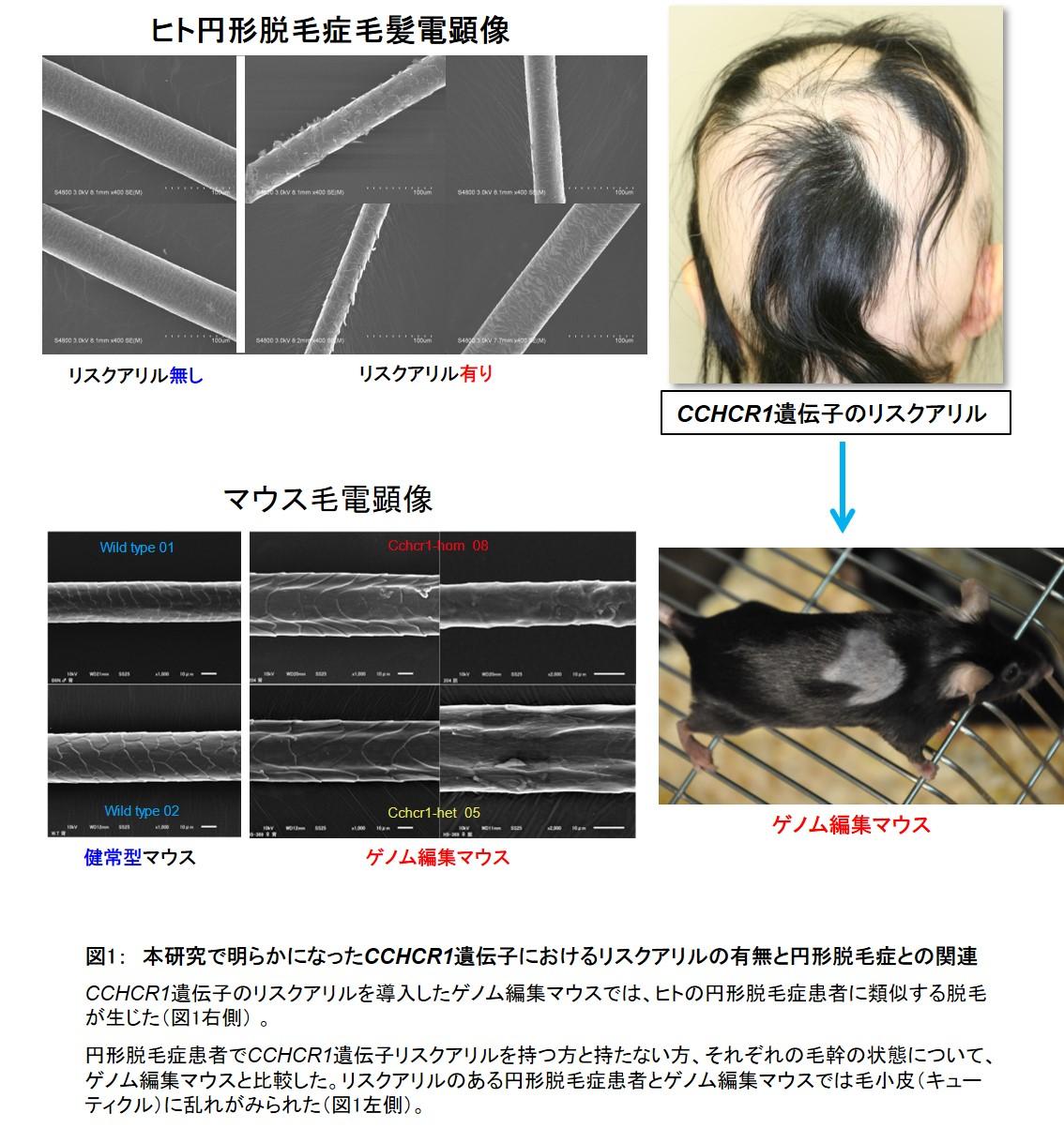 世界初、円形脱毛症の原因遺伝子を同定