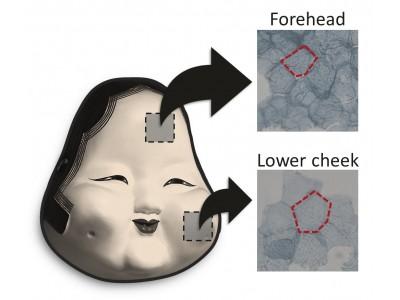 たるみの原因、重力による皮膚表層の細胞面積拡大を発見