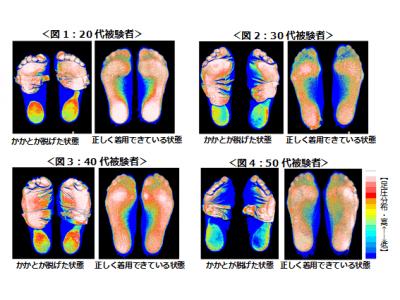 岡本株式会社、整形外科医師 医学博士 中村格子先生監修による実証実験を実施「フットカバー」が脱げた状態(※1)で歩くと足の負担が増える?