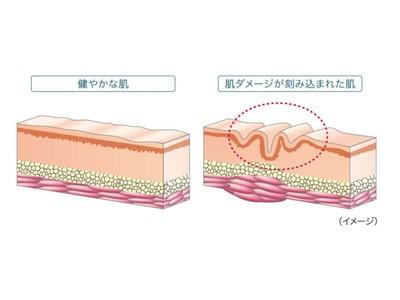 ドクターフィル コスメティクス 部分用集中ケア美容液「IC.U アルジェックス」をリニューアル