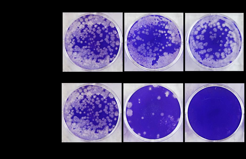 フジコー、奈良県立医科大学で「新型コロナウイルス」(SARS-CoV-2)の不活化を実証