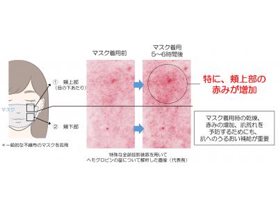 新しい生活様式では、肌へのうるおい補給が重要! ~最近の肌状態に関するアンケート調査から見えてきた肌荒れリスク~