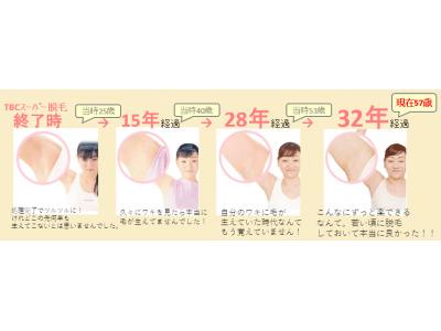 満足度98.8%「TBCスーパー脱毛」はここまでスゴかった!32年間 1度も剃る抜くしていないワキ公開!両ワキ体験キャンペーン実施中!