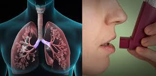 世界の慢性閉塞性肺疾患(COPD)・喘息デバイス市場規模調査―製品タイプ別(吸入器およびネブライザー)、適応症別、流通チャネル別(小売薬局、病院、オンライン薬局)、および地域予測2020- 2027年
