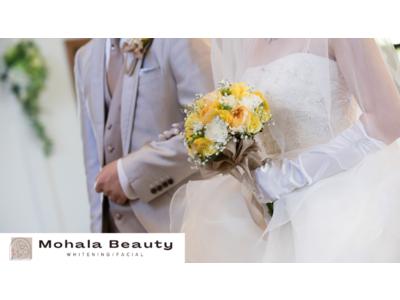 花嫁準備で行っておくべき|ブライダルホワイトニングが低価格で効果抜群!